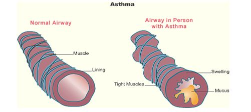 Airway-Asthma2