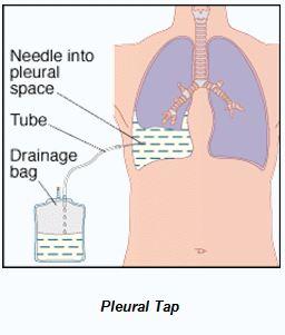 Pleural-tap