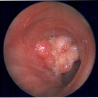 rare-lung-tumor